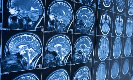 Cancer drug linked to TBI treatment