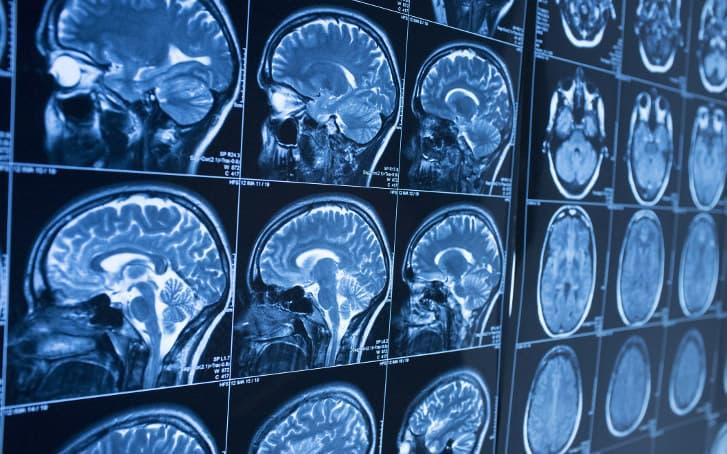 Testosterone therapy (TRT) can increase men's stroke risk