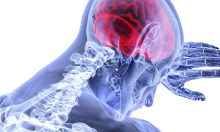 Age and IQ 'important in TBI recovery'