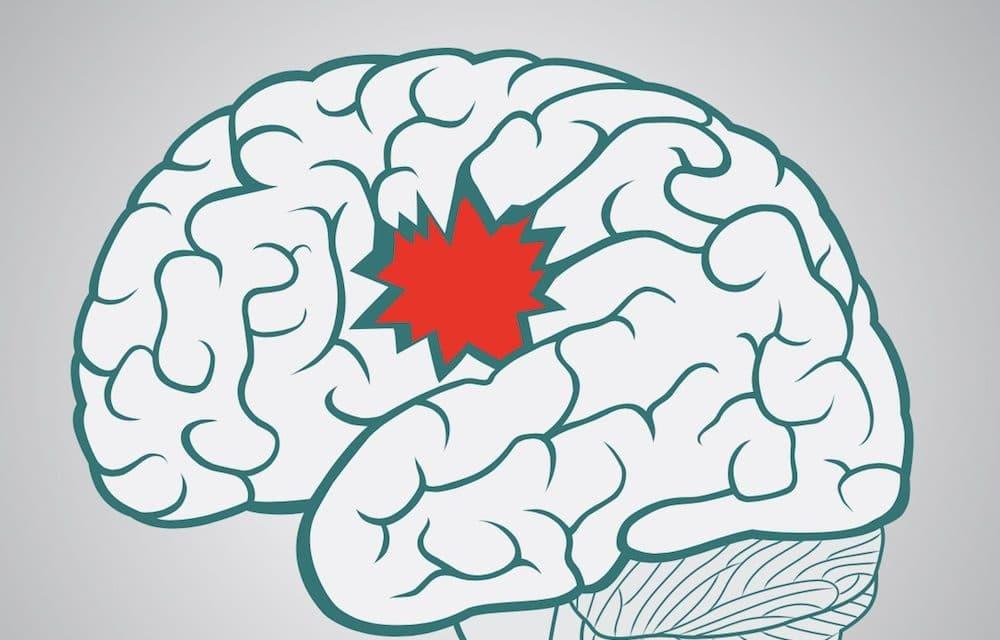Promising stroke report does not tell full story