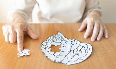 A woman making a jigsaw puzzle about Alzheimer's disease. The jigsaw is of a white brain on a wooden surface. It has one piece missing which is to the side of the brain.