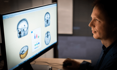 Fastball EEG data for alzheimers